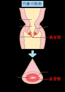 円錐切除術